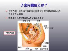 子宮内膜症.jpg