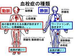 血栓症.jpg